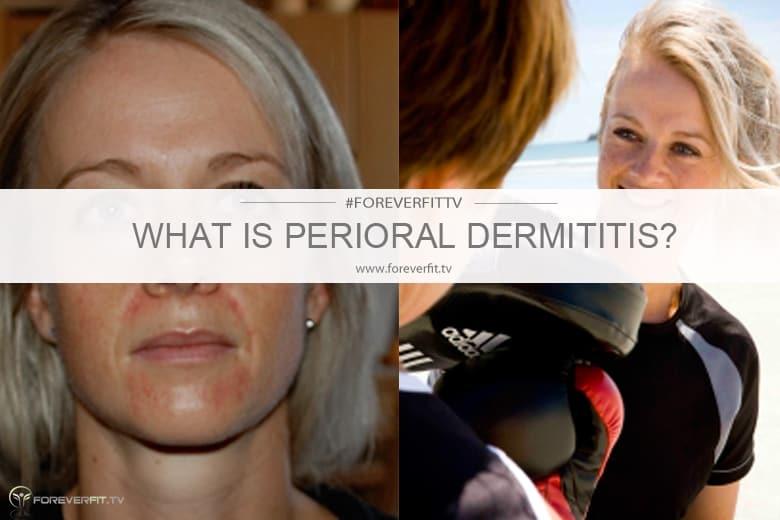 What is perioral dermititis