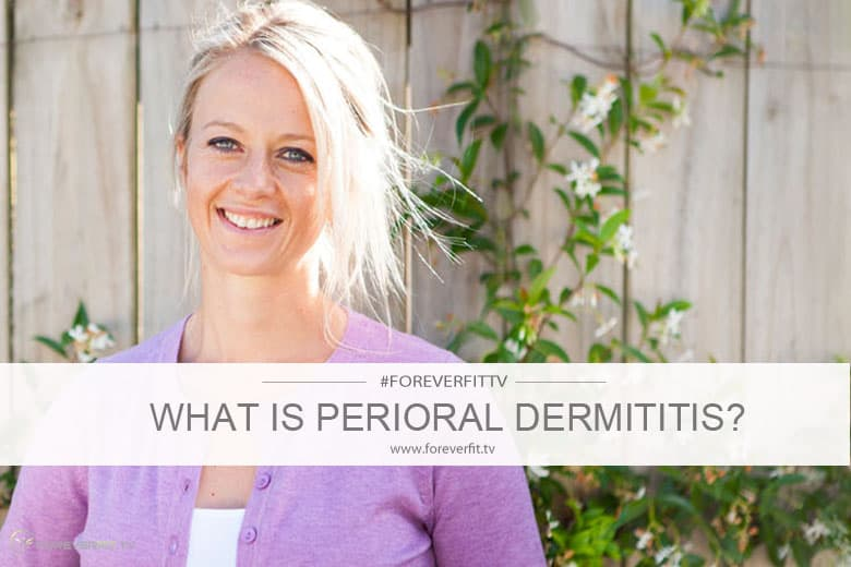 What is perioral dermititis 2