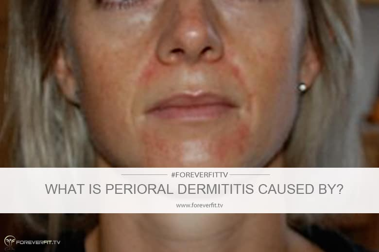 what is perioral dermatitis caused by