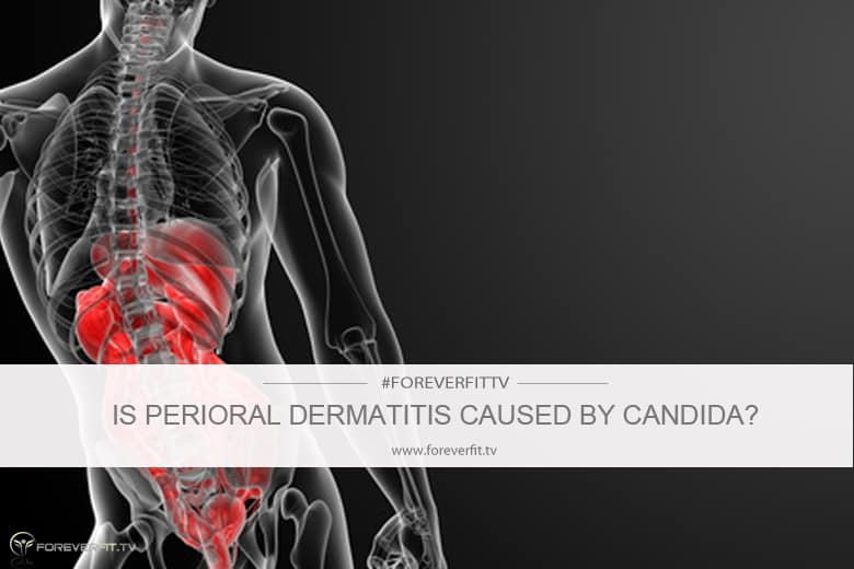Is perioral dermatitis caused by candida