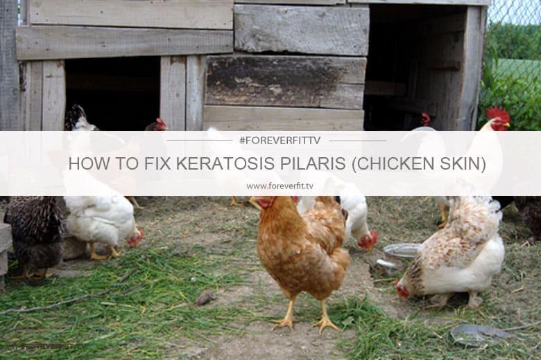How To Fix Keratosis Pilaris